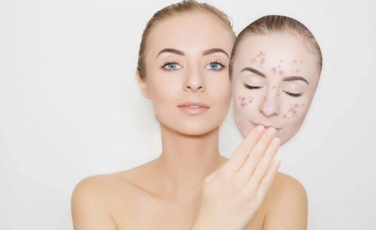 remedios caseros para quitar manchas en la piel dela cara
